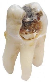 Teeth Cavity Fillings