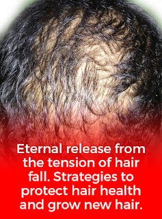 Types of hair loss, How to prevent hair loss, Hair loss vitamins, Which vitamin deficiency causes hair loss, Thyroid hair loss, Illnesses that , cause hair loss, Hair loss Shampoo, Aggressive hair loss, Page Navigation