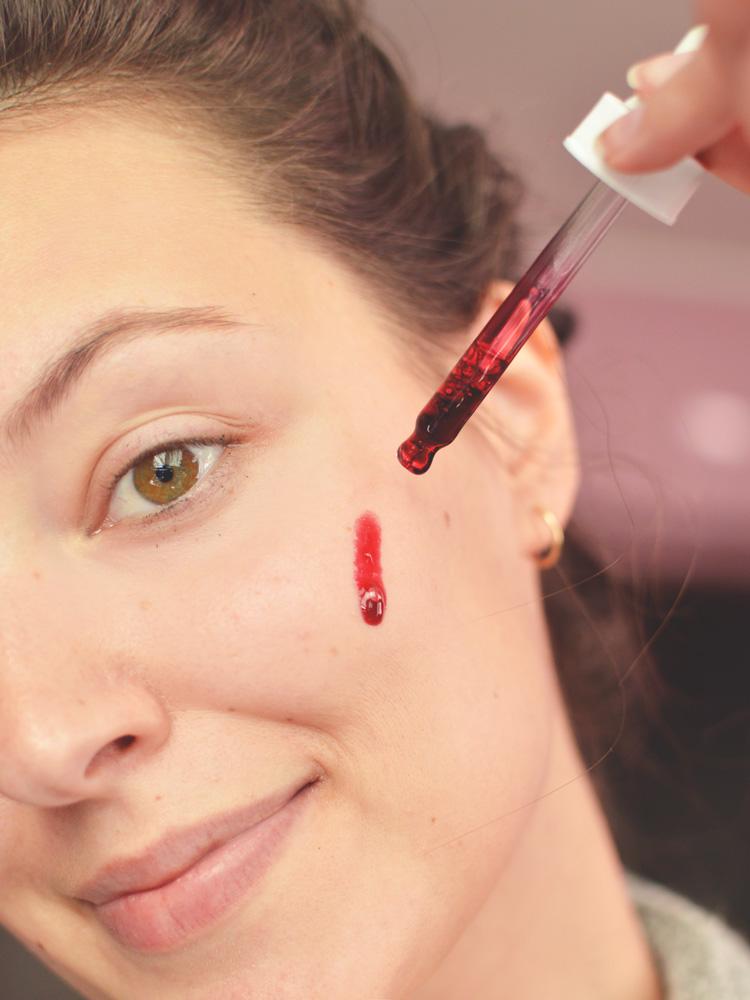 Peeling kwasowy The Ordinary - czy to działa? Efekty, opinia - Czytaj więcej »