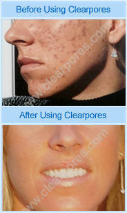 Clear Pores Acne Skin Care Treatment