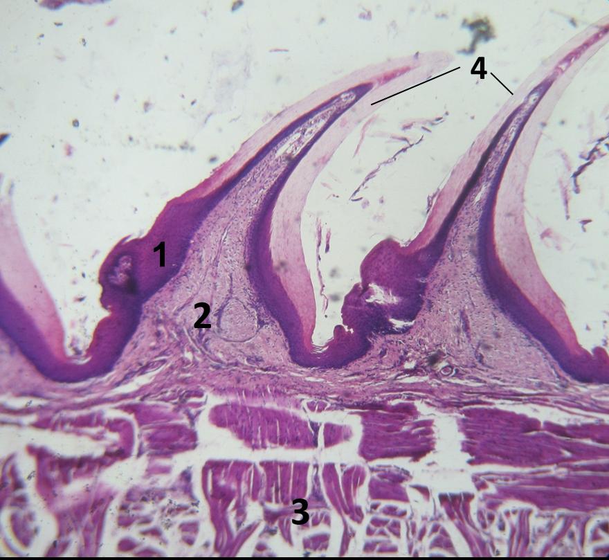 papiloma lingual histologia