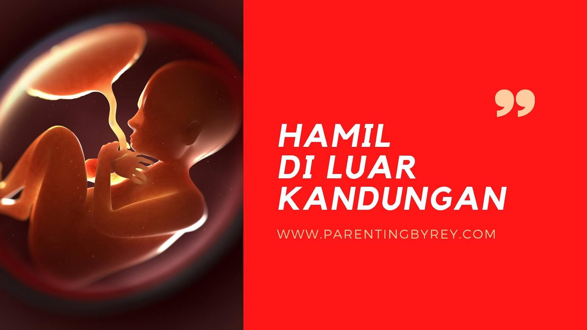 hamil di luar kandungan