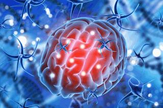 Cara Mengobati Kanker Otak Menurut Medis