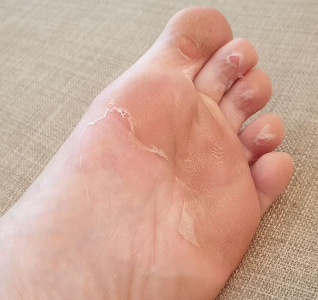 picioare fine