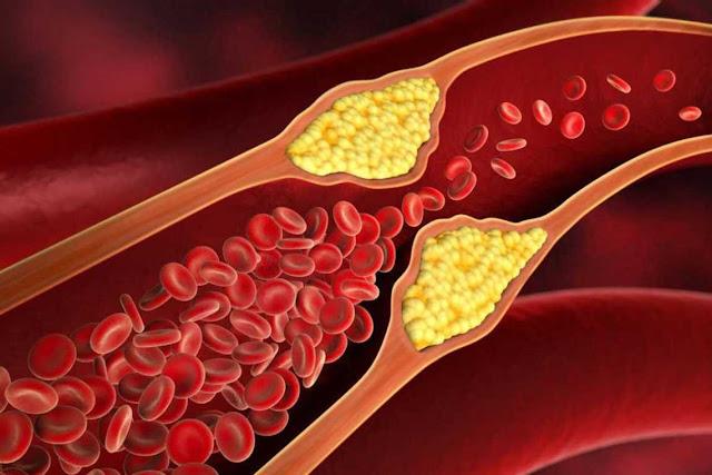 Penyakit Hiperkolesterolemia