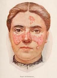 Obat Penyakit Lupus Yang Paling Ampuh Di Apotik