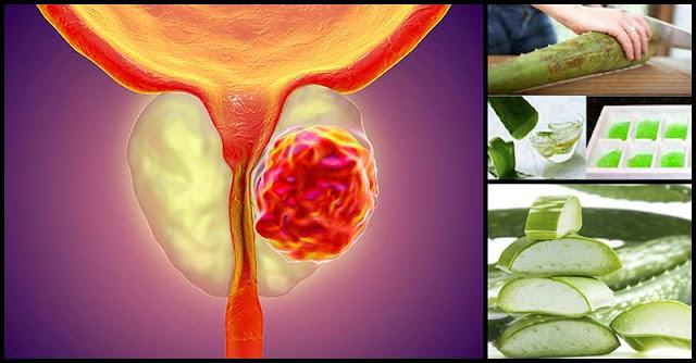 Help Combat Prostate Cancer With Aloe Vera