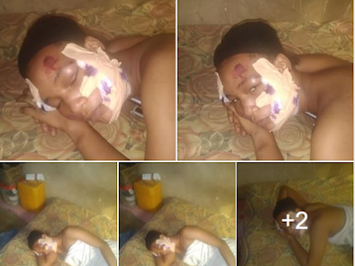 Young lady face disfigured over allegations she snatched her friend's boyfriend. (Photos)
