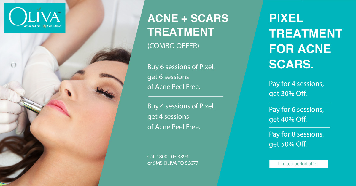 treatment for acne scars essay