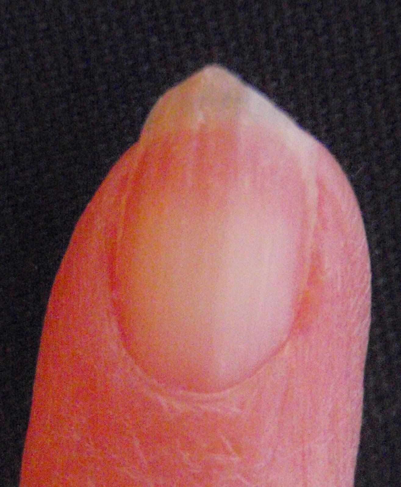 brittle broken nail