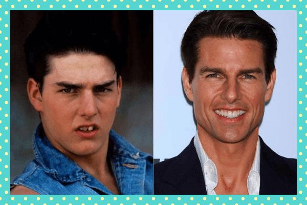 Tom Cruise Eski Yeni Dişleri