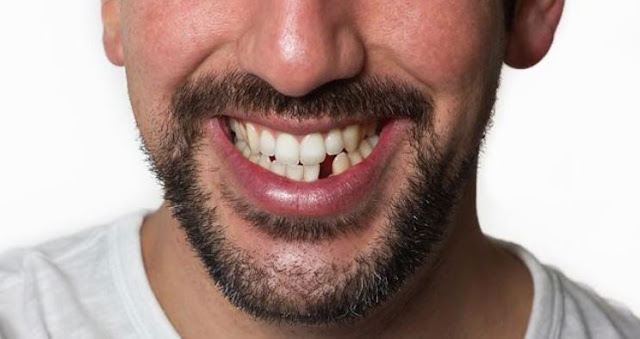 dental implants importance replacing missing teeth frugal dentistry
