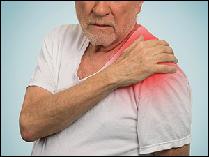 Polymyalgia rheumatica, Herbal Remedies