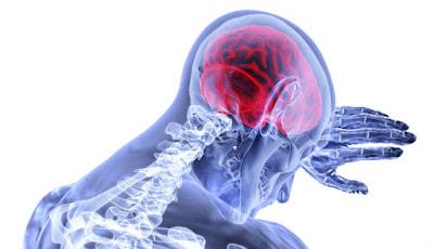 Ilustrasi penyakit stroke