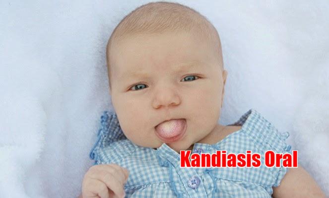 Jenis Penyebab Utama Infeksi Di Mulut Bayi