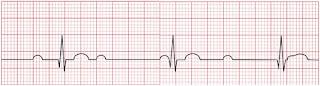 An ECG of third-degree atrioventricular block.