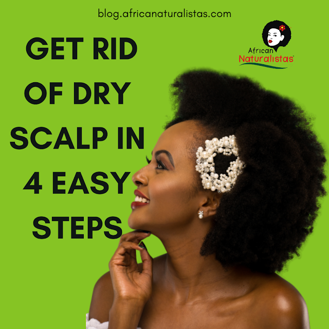 GET RID OF DRY SCALP IN 4 EASY STEPS