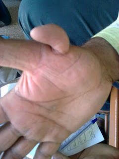 extra thumb or extra finger in palmistry