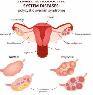 beda ovarium normal dan pcos