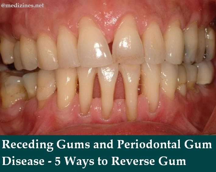 Natural Ways To Cure Periodontal Disease