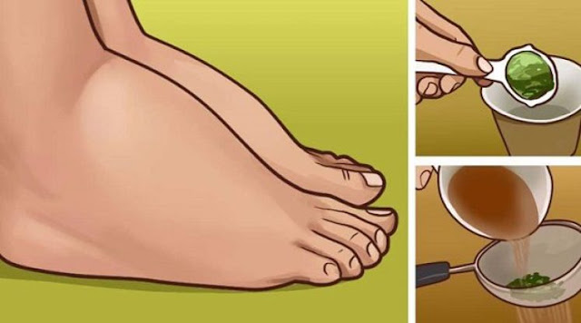 The Most Powerful Natural Medicine For Swollen Feet & Ankles