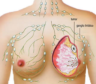 Mengobati Kanker Payudara Stadium 3, Cara Ampuh Mengatasi Kanker Payudara Parah, Cara Herbal Mengobati Penyakit Kanker Payudara