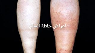 هل جلطة الساق خطيرة ؟
