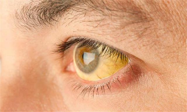اعراض فيروس سي و اسباب الإصابة بفيروس سي