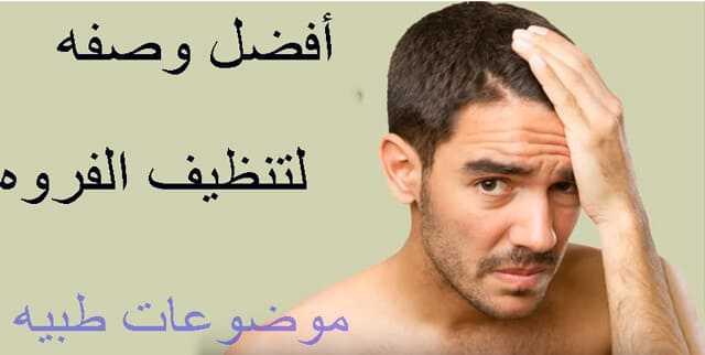 علاج تساقط الشعر بالاعشاب للرجال