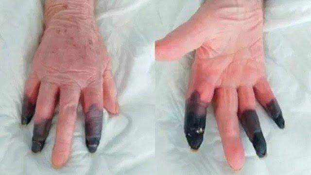 Paciente sofre rara reação à Covid-19 e tem três dedos amputados  - Adamantina Notìcias