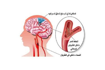 الجلطة الدماغية - 10 اسباب و 5 اعراض للجلطة الدماغية