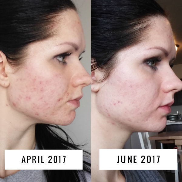 Acne before and after progress
