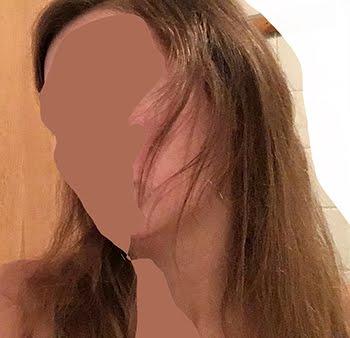 Wie sieht haarbruch aus