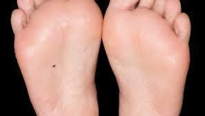 #25. A mole at the bottom of the feet symbolizes someone who needs to travel. - These Moles On Your Body May Reveal Secrets About Your Life.