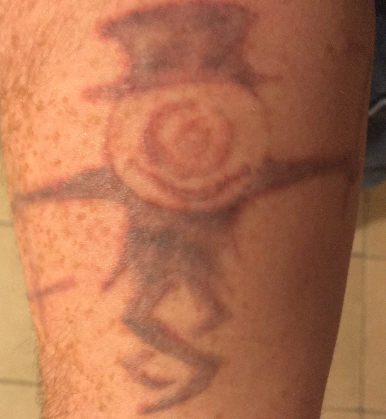 My arm got hot fun with tattoo removal session 9 for How much is picosure tattoo removal
