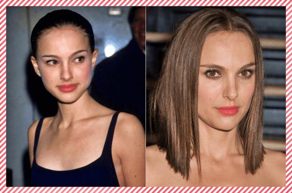 Natalie Portman Estetik Öncesi ve Sonrası