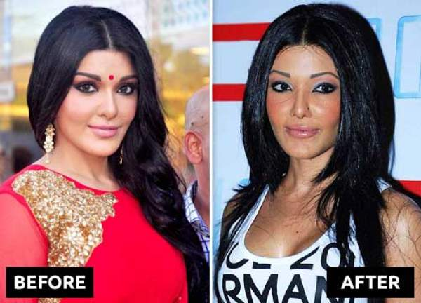 कोएना मित्रा plastic surgery now and then