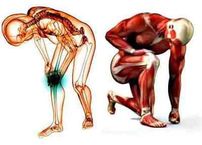 Enfermedades músculos miopatías