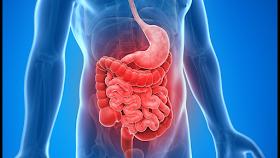 التهاب الأمعاء الغليظة التقرحي