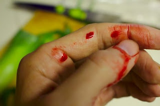 تفسير رؤية حلم الجرح أو الجروح في المنام