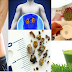 How To Pass Kidney Stones Quickly According To Experts