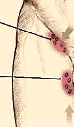 linfonodo inguinale ingrossato