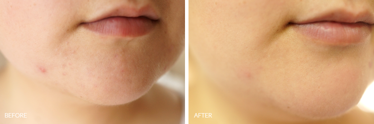 ciracle-vitamin-c-source-serum-review-before-after