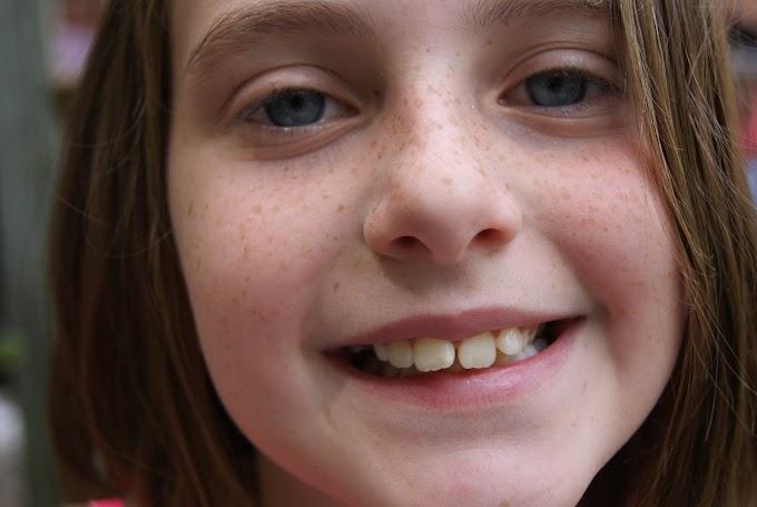 Sebelum Sakit, Yuk Dapatkan Manfaat Gigi dari Asuransi Kesehatan!