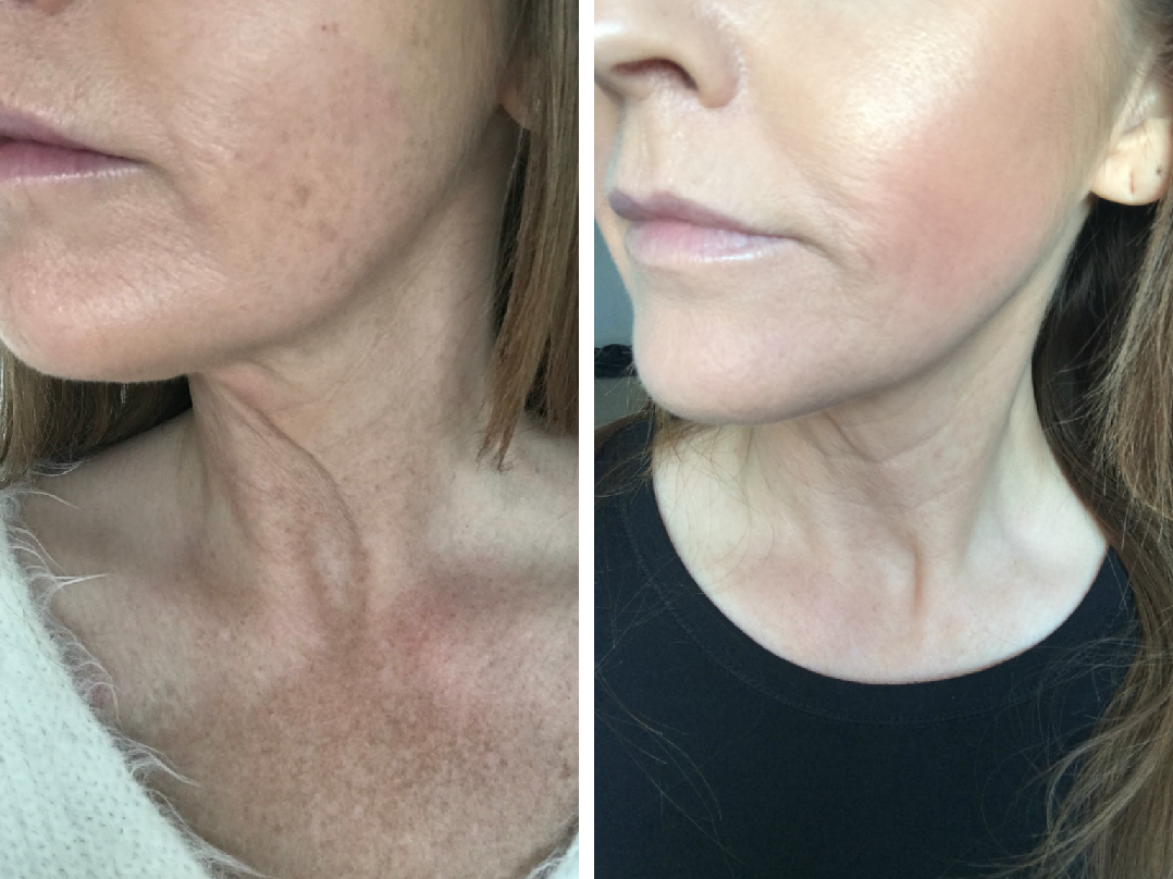 Before and after photos following Profhilo treatment
