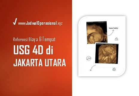 USG 4D di Jakarta Utara