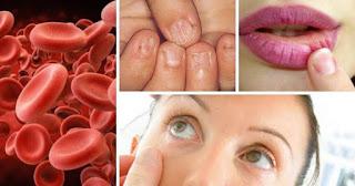 كيف تعالج مريض فقر الدم بالتغذية ؟ anemia