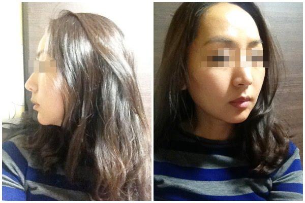 짱이뻐! - My Diary of Lifting Plastic Surgery in Korea Part 2