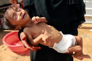 5 Tahun Pemberontakan Syiah Houthi di Yaman, Jutaan Rakyat Terancam Meninggal akibat Wabah Kelaparan