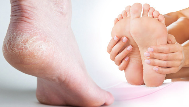 feet, health